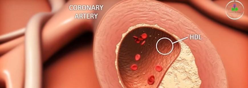 Parlare del problema del colesterolo